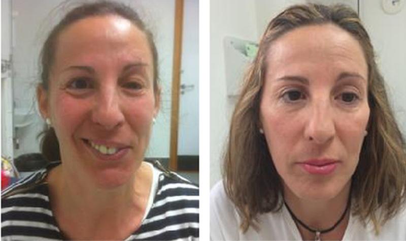 13 personas presentan parálisis facial por vacuna contra Covid-19