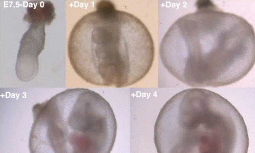Científicos intentan cambiar la biología creando embarazos en úteros artificiales