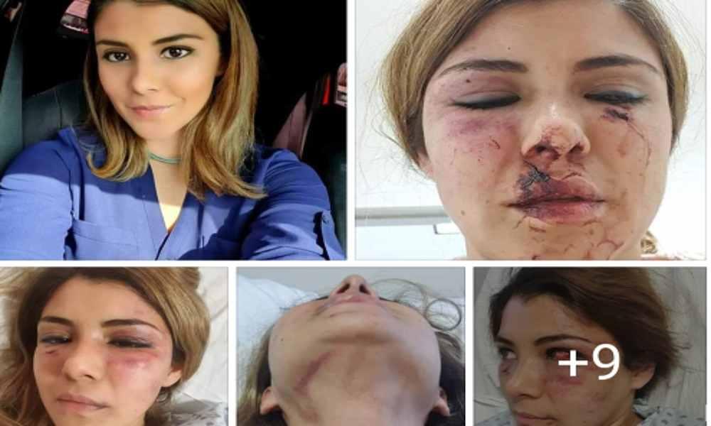 Joven cristiana es golpeada por supuesto pastor que intentó asesinarla