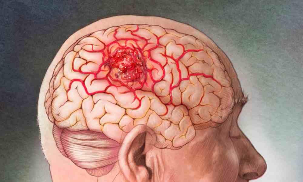Universidad en Israel revela avance en la cura del cáncer de cerebro